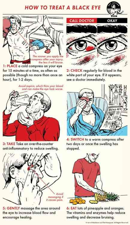How to treat a black eye