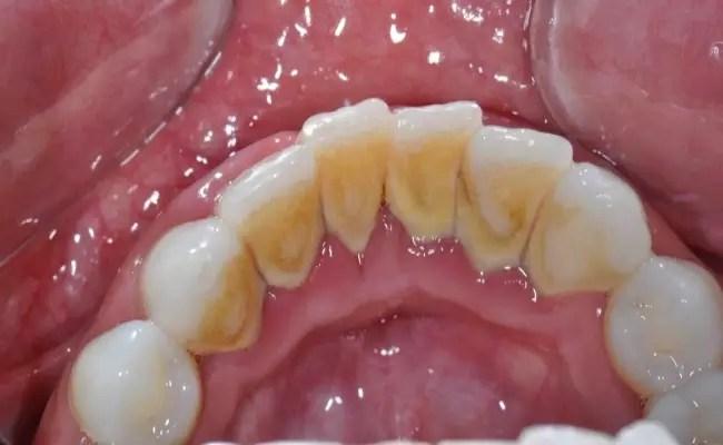 Diş Plağı Nasıl Oluşur