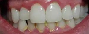 diş-plağı