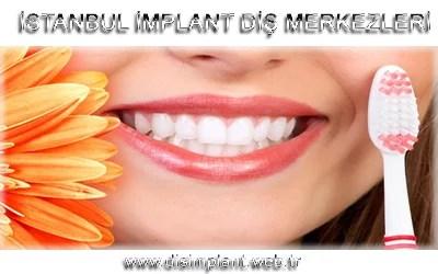 istanbul implant diş merkezleri.fw