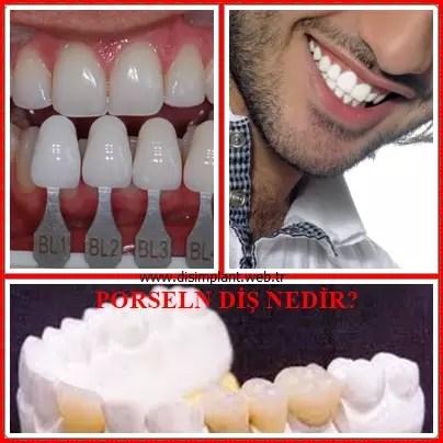 porselen diş nedir