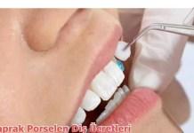 Yaprak Porselen Diş Ücretleri