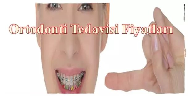 Ortodonti Tedavisi Fiyatları 2017