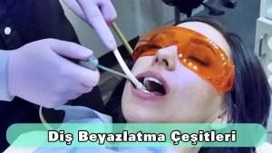 diş beyazlatma çeşitleri nelerdir