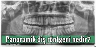 Panoramik diş röntgeni Nedir