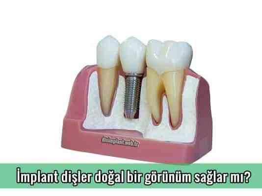 İmplant dişler doğal bir görünüm sağlar mı