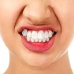 Diş Eti Hastalıkları Nelerdir Tedavisi