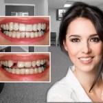 Diş implant Sonrası Şişlik