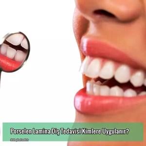 Porselen Lamina Diş Tedavisi Kimlere Uygulanır?