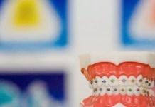 Sgk Diş Teli Karşılıyor mu