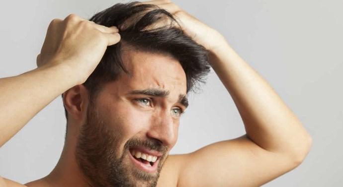 Conoce los verdaderos riesgos de los injertos capilares low cost