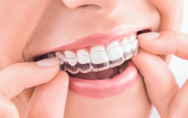 ¿Por qué usar Invisalign? Ventajas e inconvenientes de la ortodoncia Invisalign