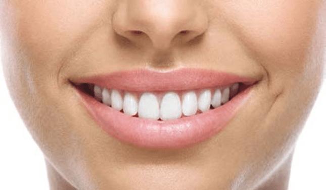 ¿Es posible sustituir los dientes originales?