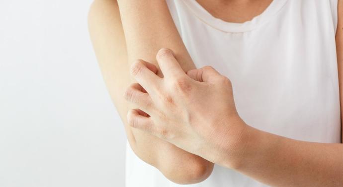 Componente genético de la dermatitis atópica