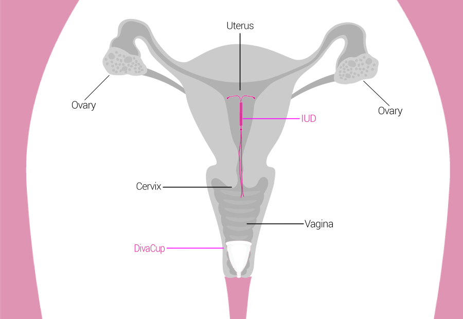 Can you use a DivaCup Menstrual and IUD?