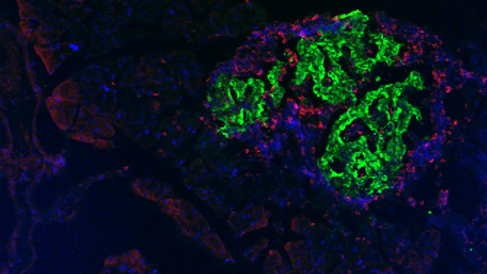 Beta hücrelerini strese karşı korumak tip 1 diyabeti önleyebilir.