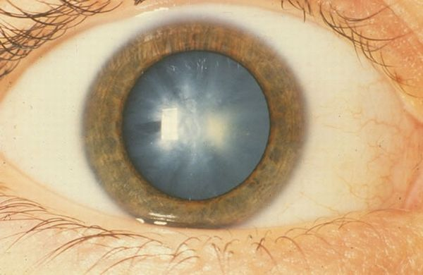 Diabetes and cataracts