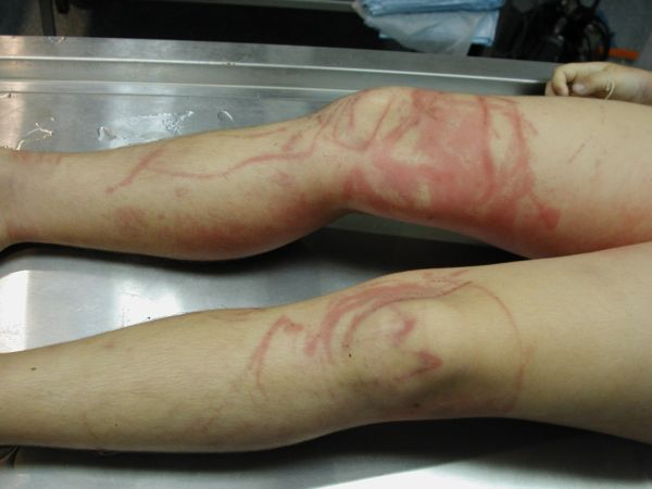 Jellyfish stings