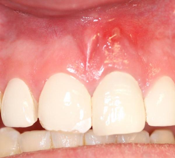 Gum and Tooth Abscess_1