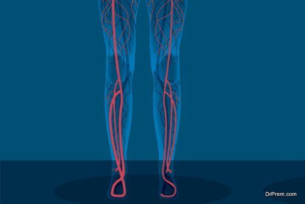 painful-varicose-veins
