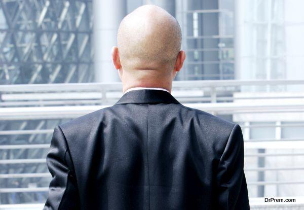male-hair-loss-2