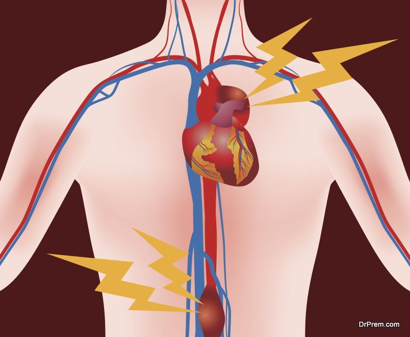 Aortic-Aneurysm