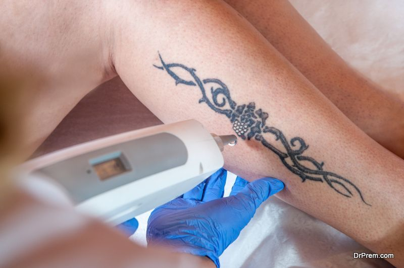 laser-tattoo-removal-processes
