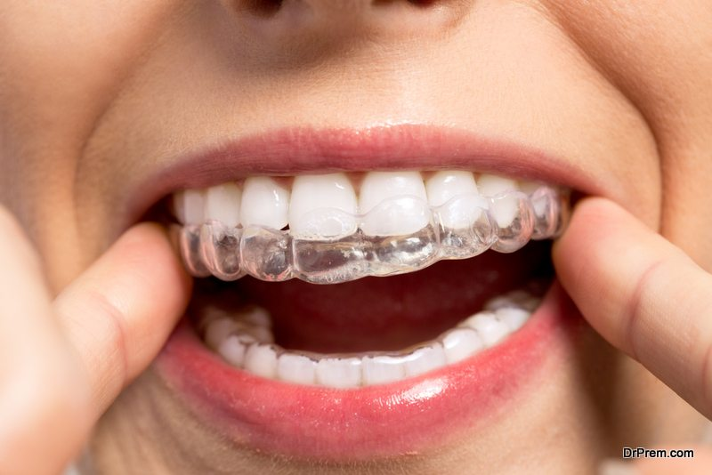 Advantages-of-Invisalign