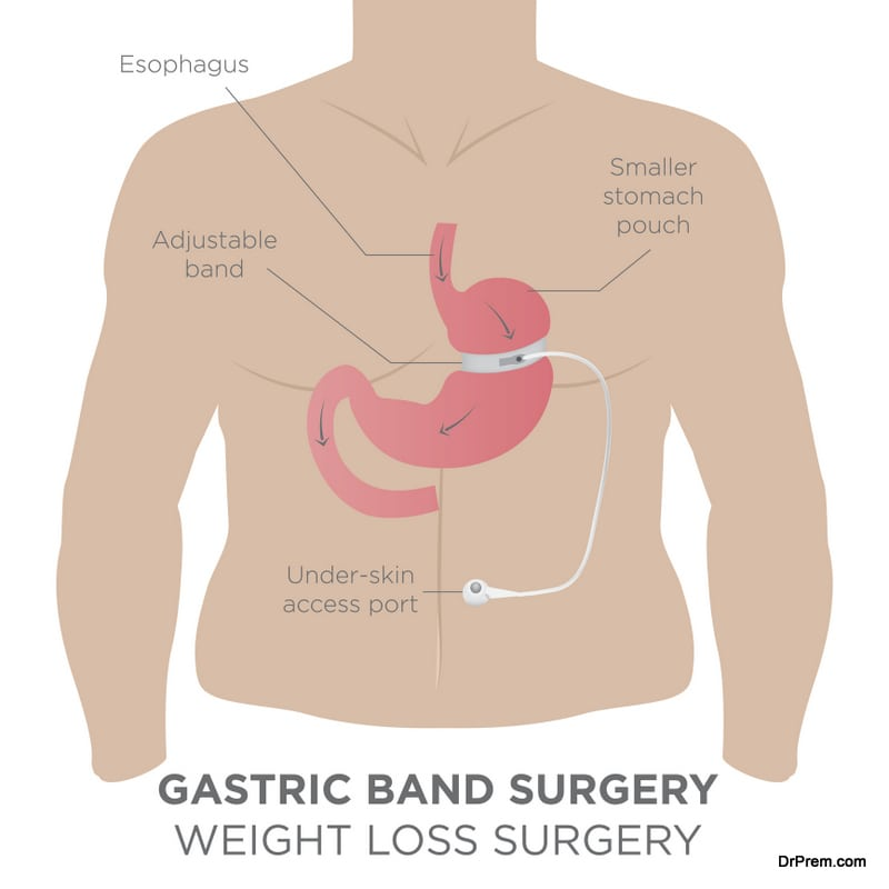 Gastric surgery for weight loss