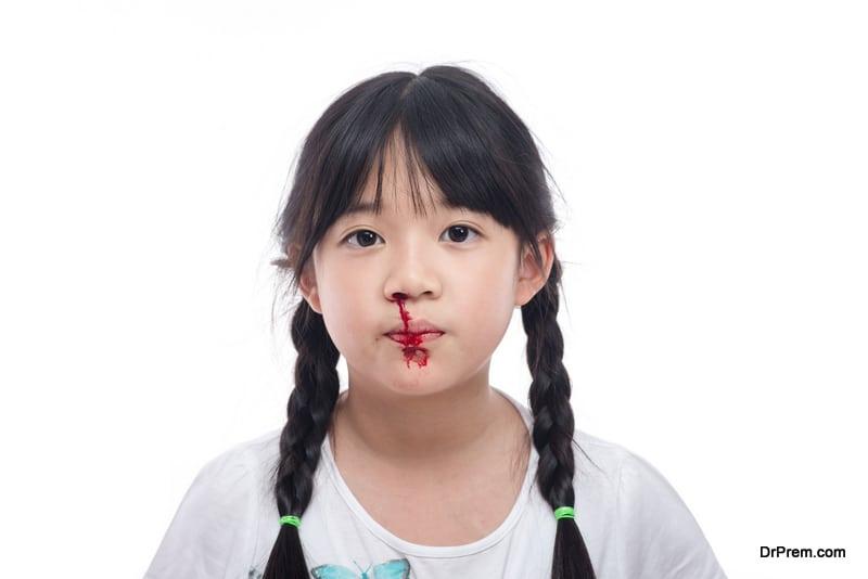 Bleeding-through-nose