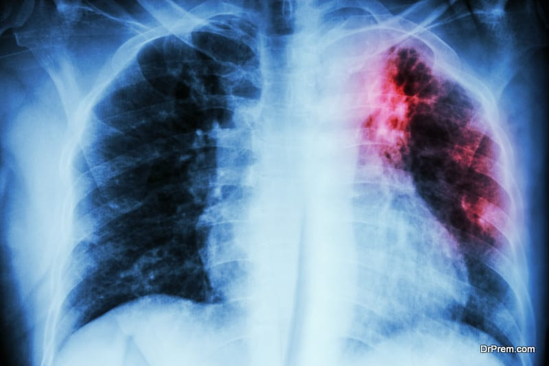 Treating drug resistant TB