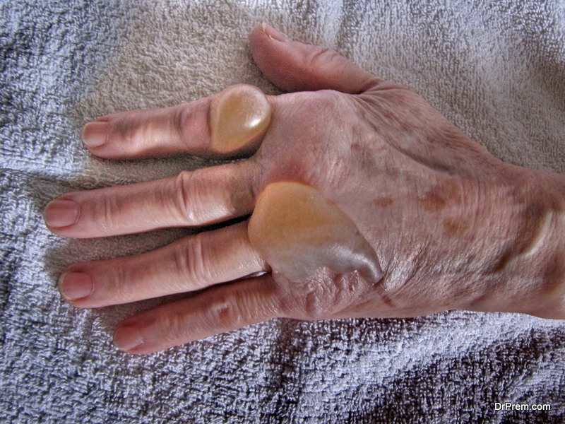Common Injuries that Senior Citizens should be aware of