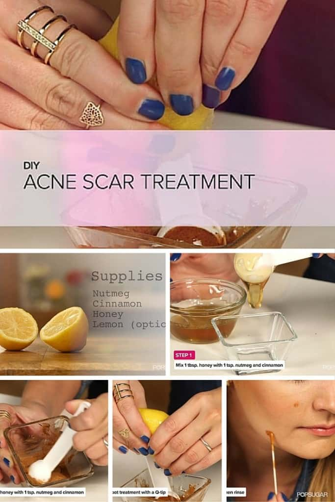 An amazing DIY Remedies for Skin Care Acne and Dark Spots