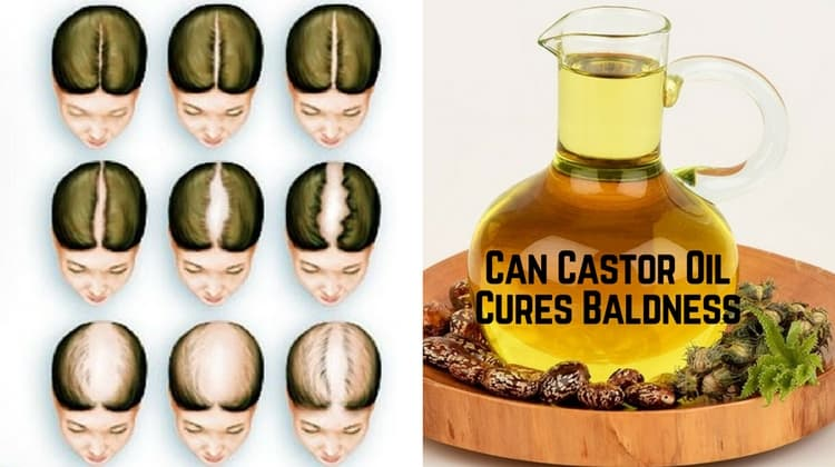 Can Castor Oil Cures Baldness
