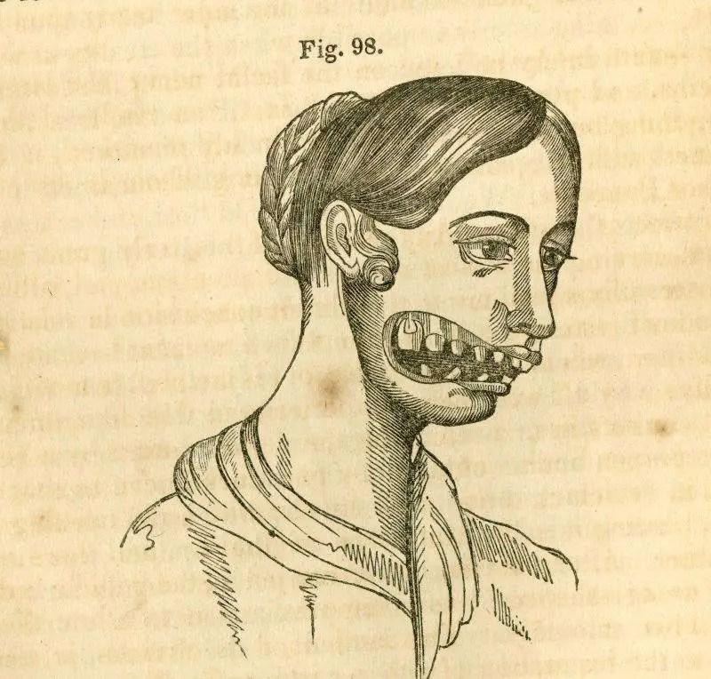 رسم تشريحي يظهر الآثار التي كان يتركها مرض نخر الفك الفوسفوري على ضحاياه.