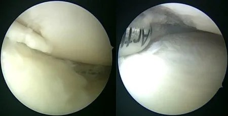 arthoscopy