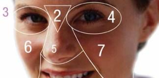 T-Zone acne