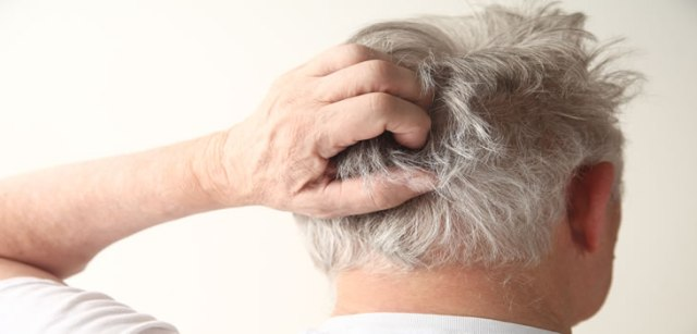 Scalp Acne Treatments