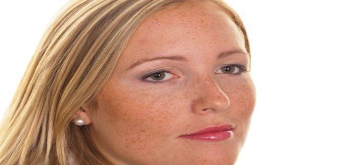 woman with skin disorder