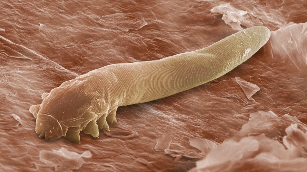 Are Demodex Mites a Cause for Acne?
