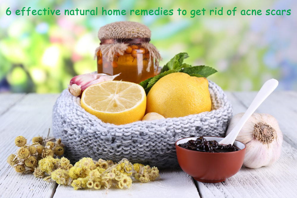 7 effective natural home remedies to get rid of acne scars