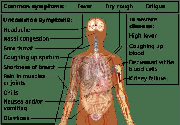 Flu Covid symptoms