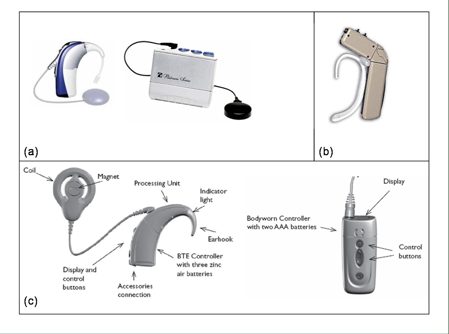 Cochlea Diagram Scala Medium
