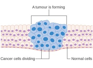 """Diagram showing how cancer cells keep on reproducing to form a tumour."" by Cancer Research UK is licensed under CC BY-SA 4.0"