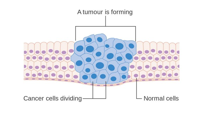 """""""Diagram showing how cancer cells keep on reproducing to form a tumour."""" by Cancer Research UK is licensed under CC BY-SA 4.0"""