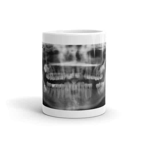 X-Ray Mug-front (11 oz)