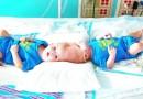USA: Udało się rozdzielić syjamskie bliźnięta zrośnięte głowami
