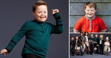 11-letni chłopiec z Zespołem Downa został gwiazdą kampanii reklamowej