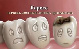 Кариес зубов. Причины, симптомы, лечение и профилактика кариеса