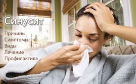 Синусит. Причины, симптомы, виды и лечение синусита